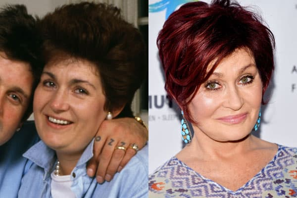 Old Images Of Sharon Osbourne Before Plastic Surgery 1