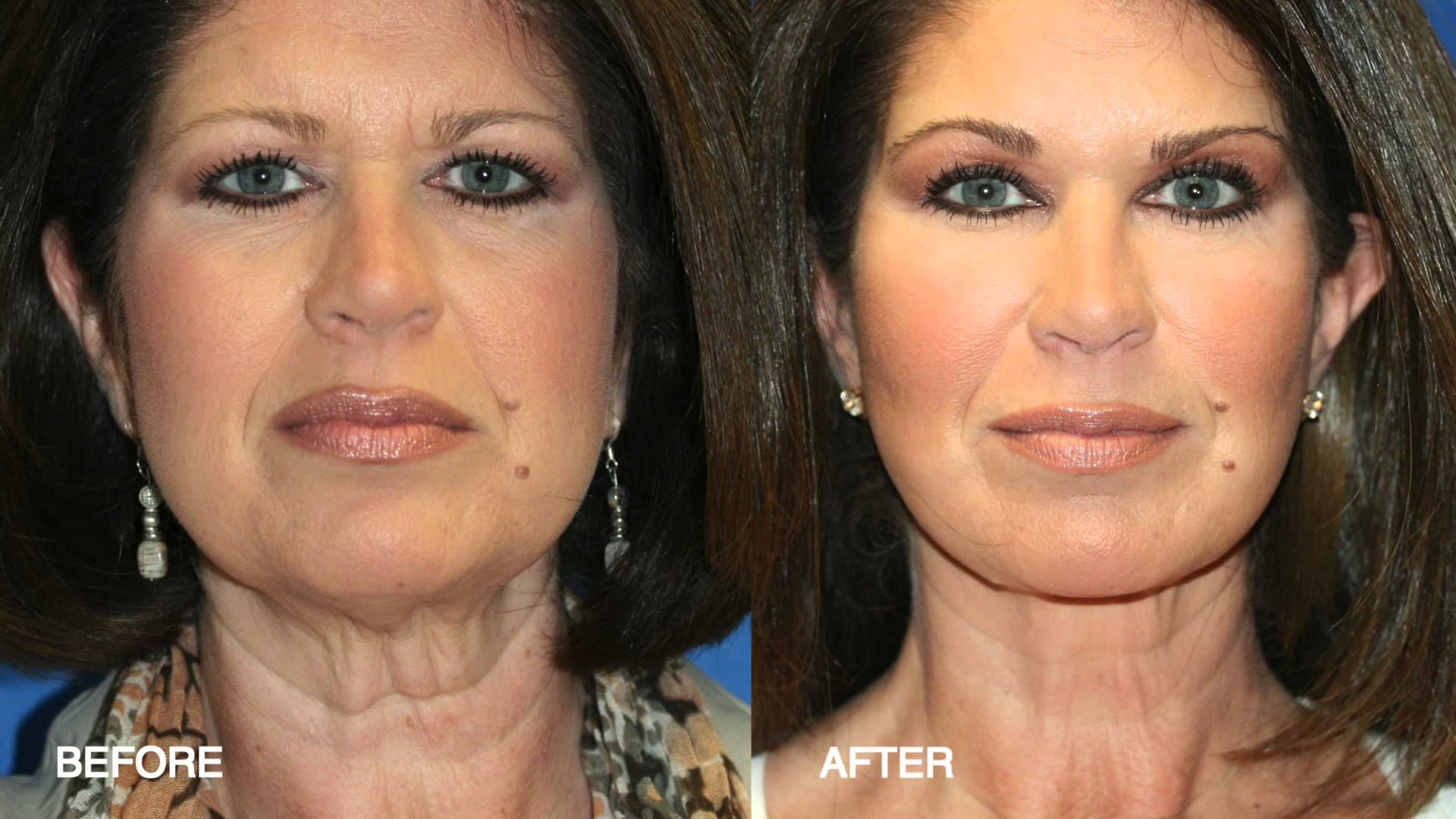 Plastic Surgery Before And After Cheek Fat Transfer 1