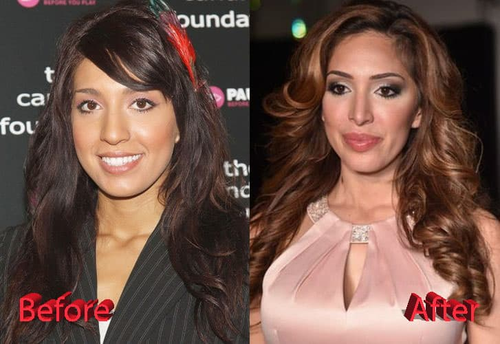 Farrah Abraham Plastic Surgery Before And After Face 1