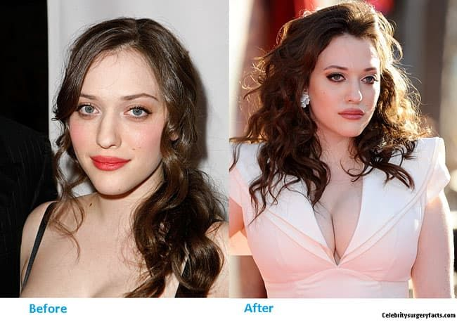 Kat Dennings Before And After Plastic Surgery Photos 1