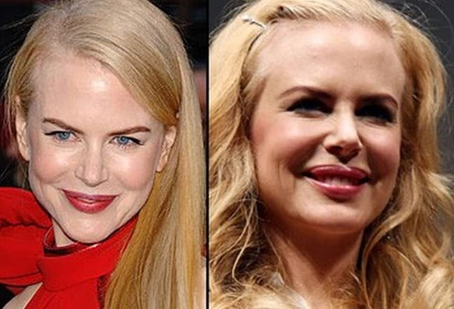 Nicole Kidman Plastic Surgery Before And After Photo 1
