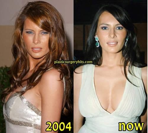 Plastic Surgery Before And After Aging Face Magazine 1