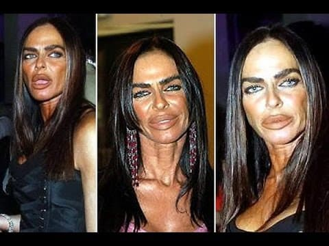 Plastic Surgery Before And After Gone Horribly Wrong 1