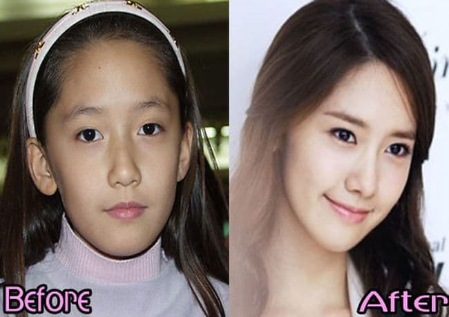 Snsd Plastic Surgery Yoona Before And After Pictures 1