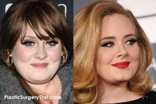 What Did Arci Munoz Look Like Before Plastic Surgery 1