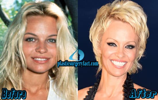 Young Pamela Anderson Before Plastic Surgery Playboy 1