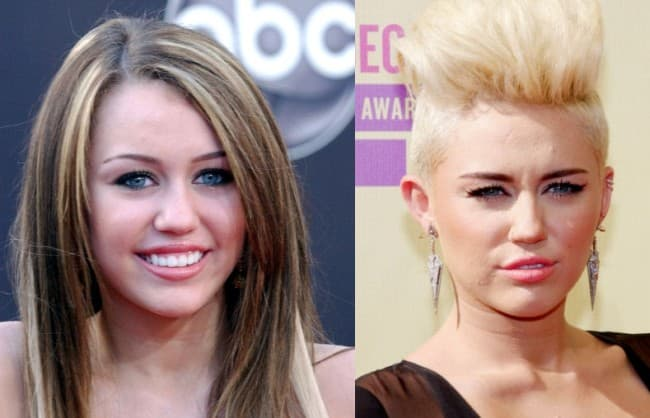 11 Celebrities Before And After Plastic Surgery Iggy 1