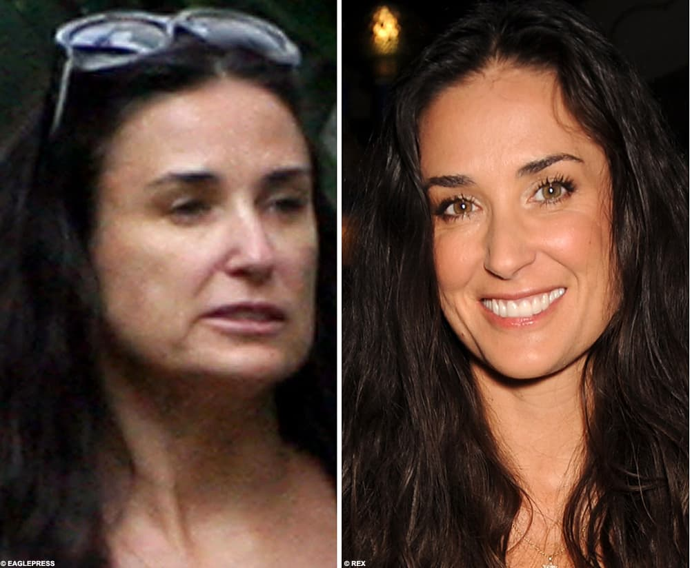 Celebrity Before And After Photos Of Plastic Surgery 1