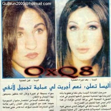 Nancy Ajram Before And After Plastic Surgery 1