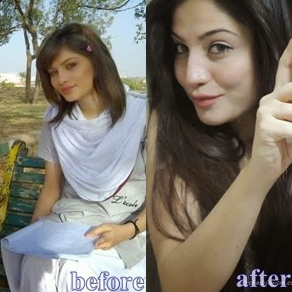 Pakistani Actresses Before And After Plastic Surgery 1