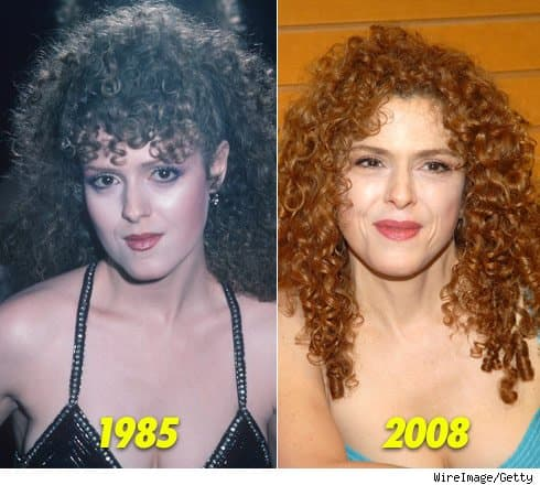 Fascinating Plastic Surgery Senior Women Before And After photo - 1