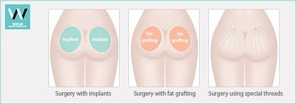 Before And After Buttock Augmentation Plastic Surgery 1