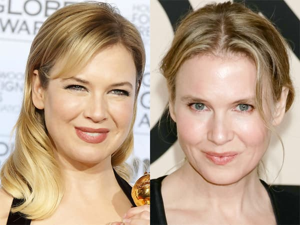 Celebrity Plastic Surgery Nightmares Before And After 1