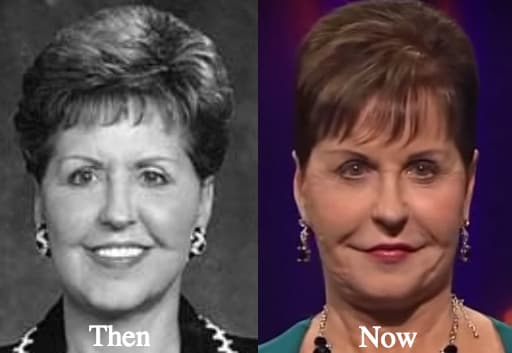 Joyce Meyer Plastic Surgery Before And After Pictures 1
