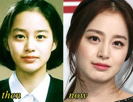 Kim Tae Hee Plastic Surgery Before And After Pictures 1