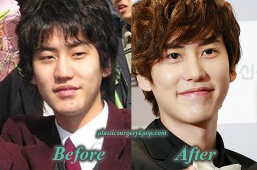 Super Junior Plastic Surgery Before And After Picture 1