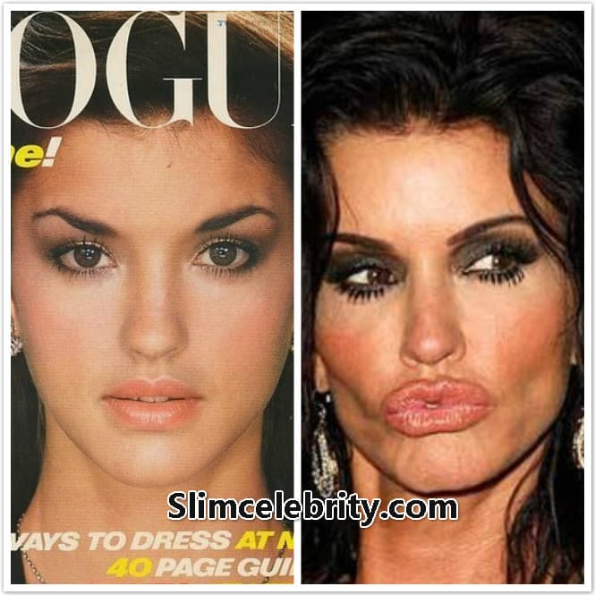 Celebrity Plastic Surgery Before And After Gone Wrong 1