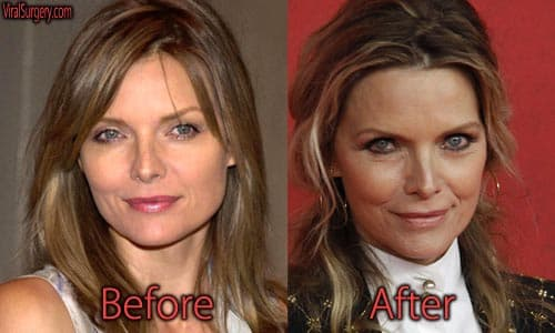 Michelle Pfeiffer Plastic Surgery Before After Photos 1