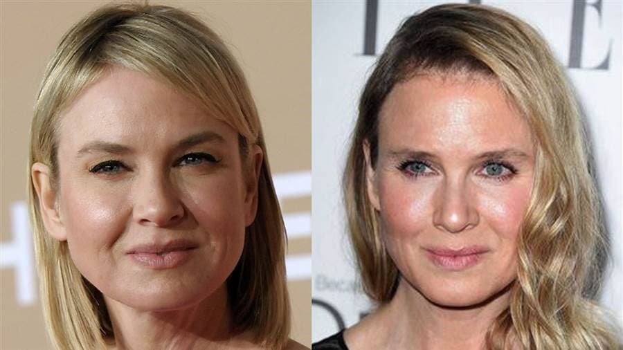 Renee Zellweger Before And After Plastic Surgery 2013 1