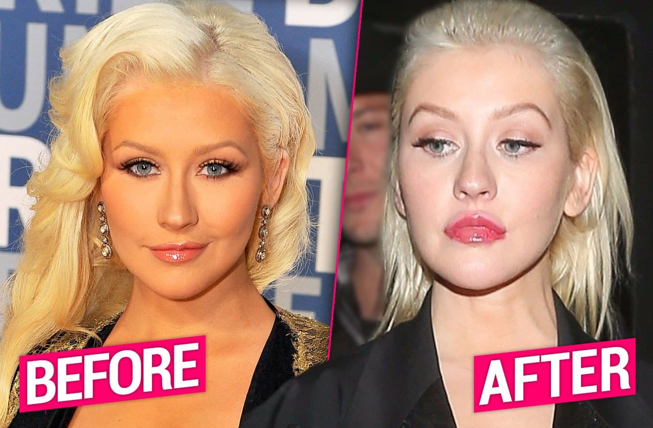 Christina Aguilera Face Plastic Surgery Before After 1