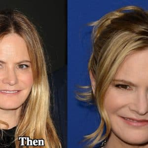 Jennifer Jason Leigh Before And After Plastic Surgery 1