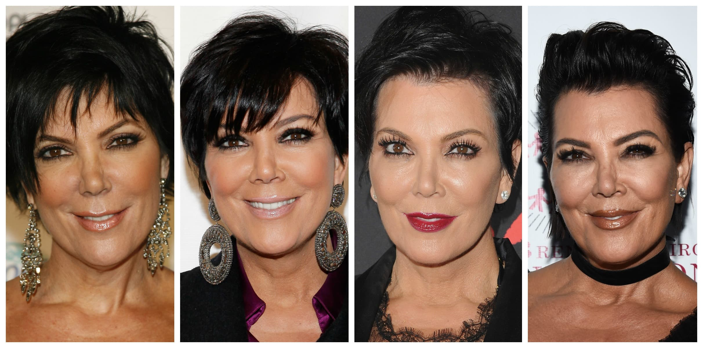 Kim Kardashian Plastic Surgery Face Before And After 1
