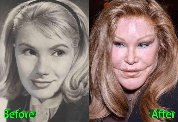 Plastic Surgery Before And After Gone Wrong Cat Woman 1