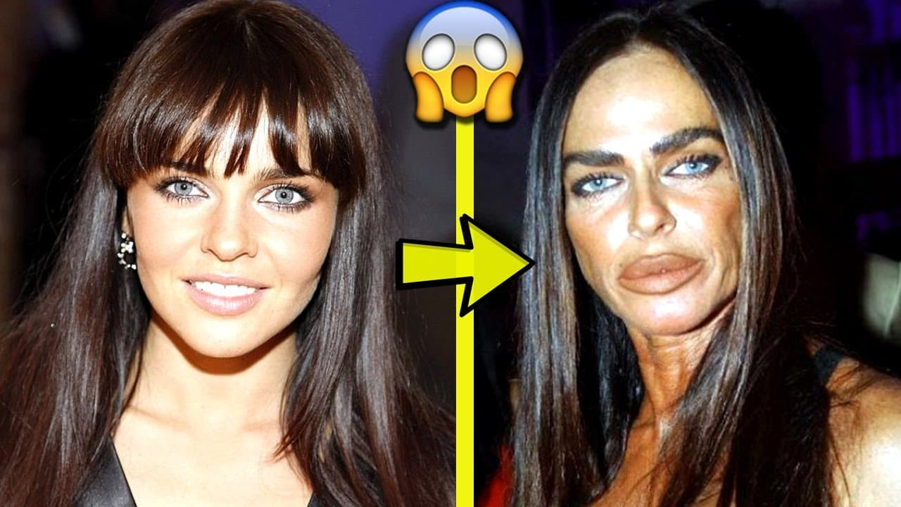 Before And After Pictures Celebrities Plastic Surgery 1