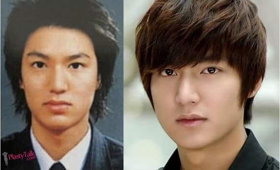 Famous Korean Actors Before And After Plastic Surgery 1