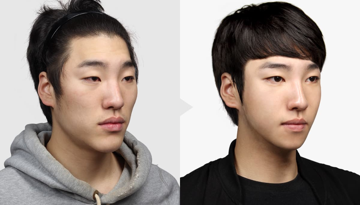 Japanese Celebrities Before And After Plastic Surgery 1