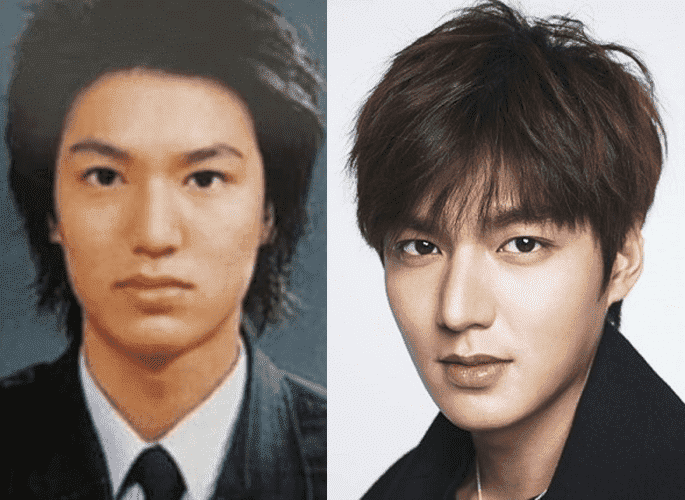 Korean Drama Actors Before And After Plastic Surgery 1