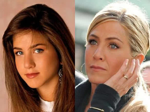 Successful Celebrity Plastic Surgery Before And After 1