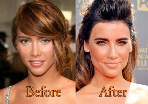 Brooke Bold And Beautiful Plastic Surgery Before And After photo - 1