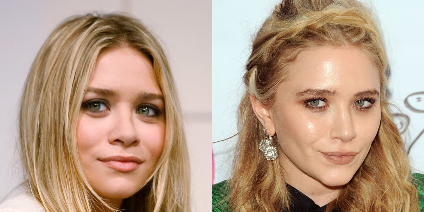 Mary Kate And Ashley Plastic Surgery Before And After 1