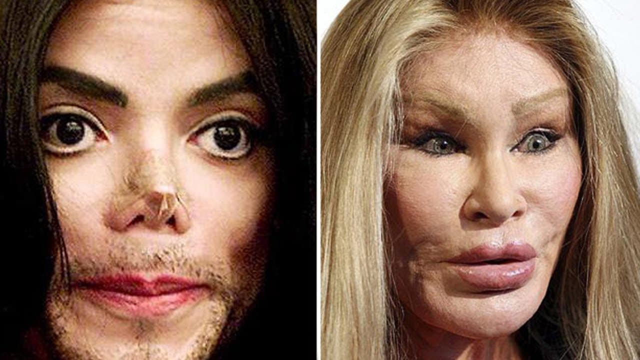 Celebrities Before And After Plastic Surgery Disasters 1
