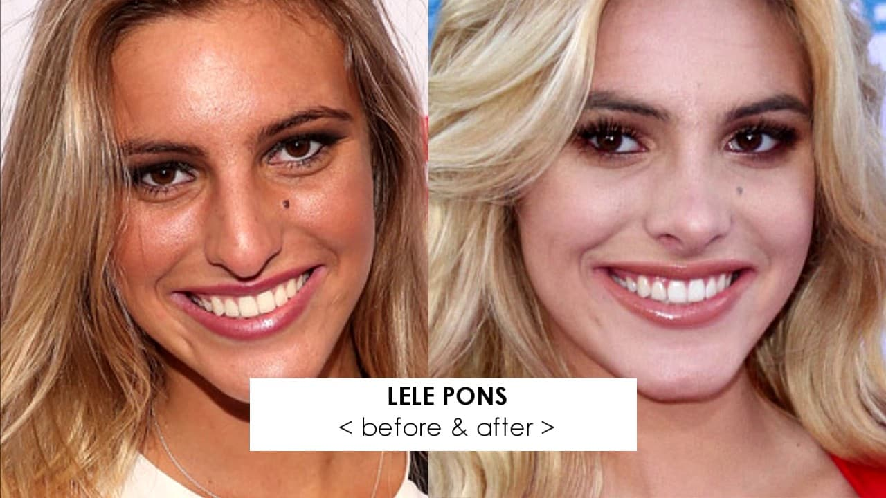 Images Of Celebrities Before And After Plastic Surgery 1