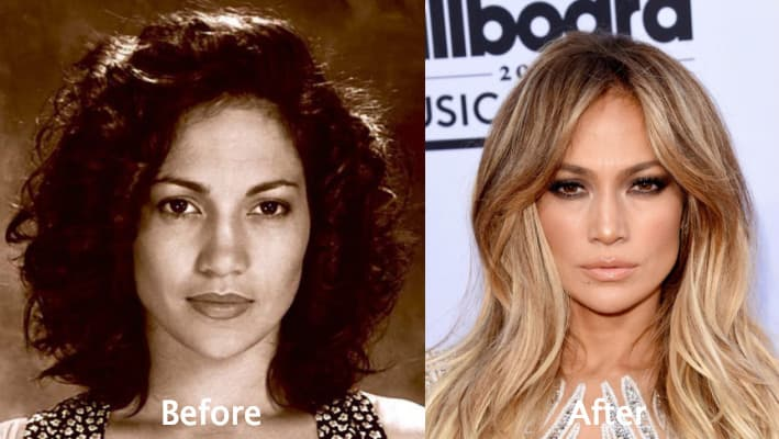 Jennifer Lopez Plastic Surgery Before And After Photos 1