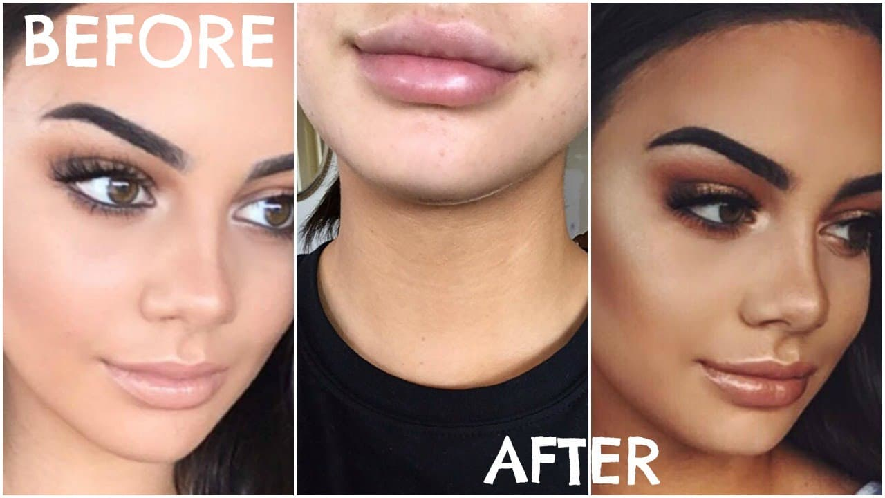 Kylie Jenner Before And After Plastic Surgery Pictures 1