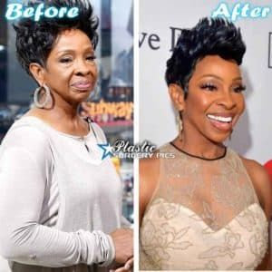 Gladys Knight Before And After Plastic Surgery 1