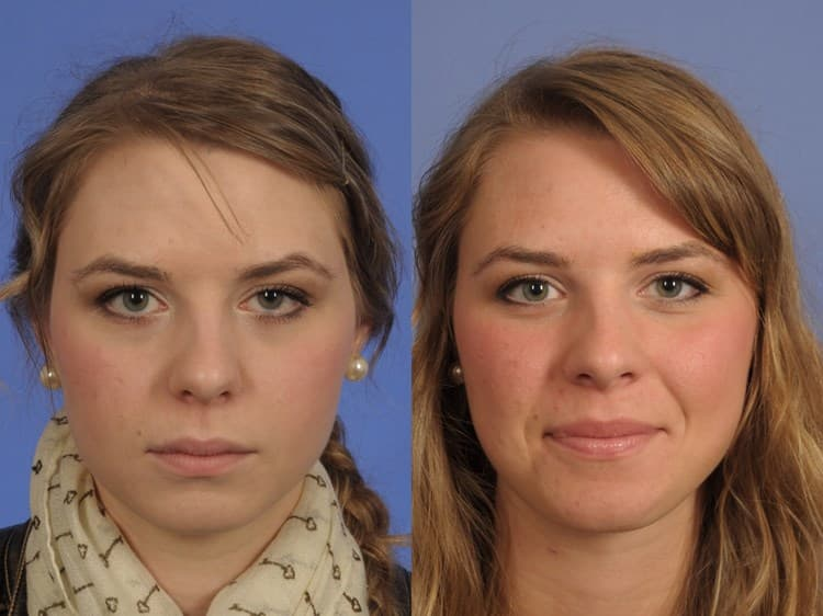 Eyelid Plastic Surgery Before And After Heavy Eye Lids 1