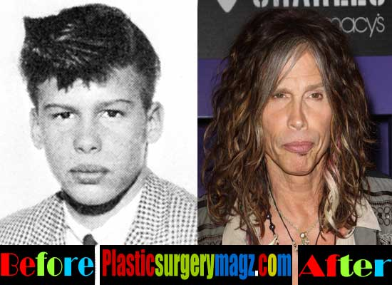 Steven Tyler Before And After Plastic Surgery Pictures 1