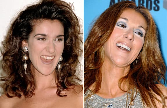 Pictures Of Celine Dion Before She Had Plastic Surgery 1
