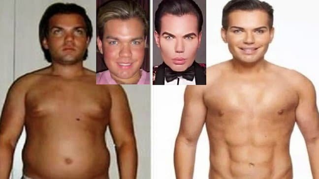 Down Syndrome Plastic Surgery Before And After Pictures 1