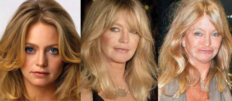 Bad Celebrity Plastic Surgery Pictures Before And After 1