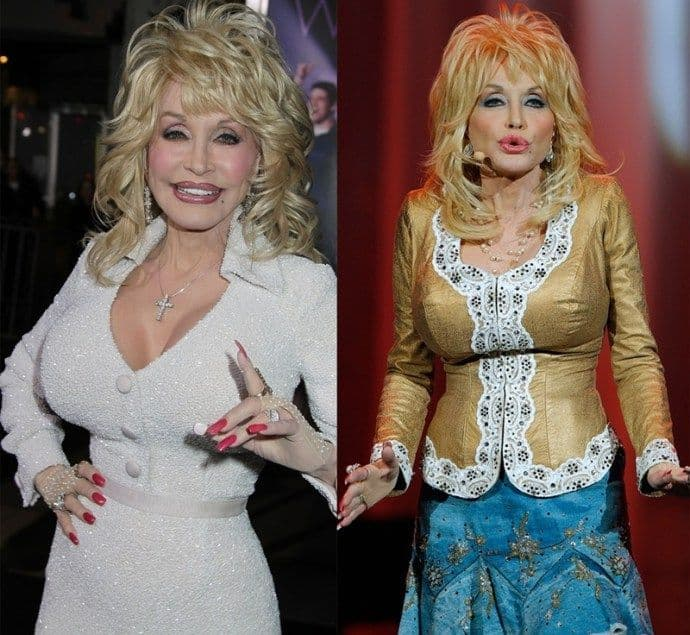 Dolly Parton Before Then Breast And Now Plastic Surgery 1