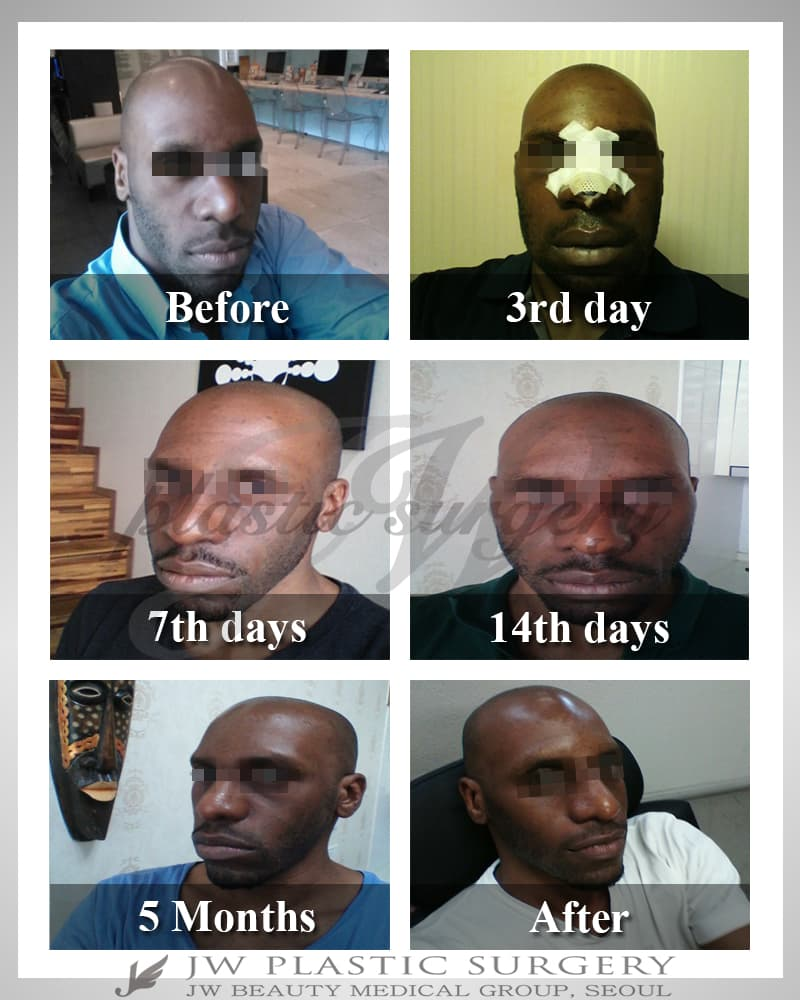 Korean Plastic Surgery On African American Before After 1