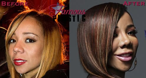 Tameka Cottle Plastic Surgery Before And After Pictures 1