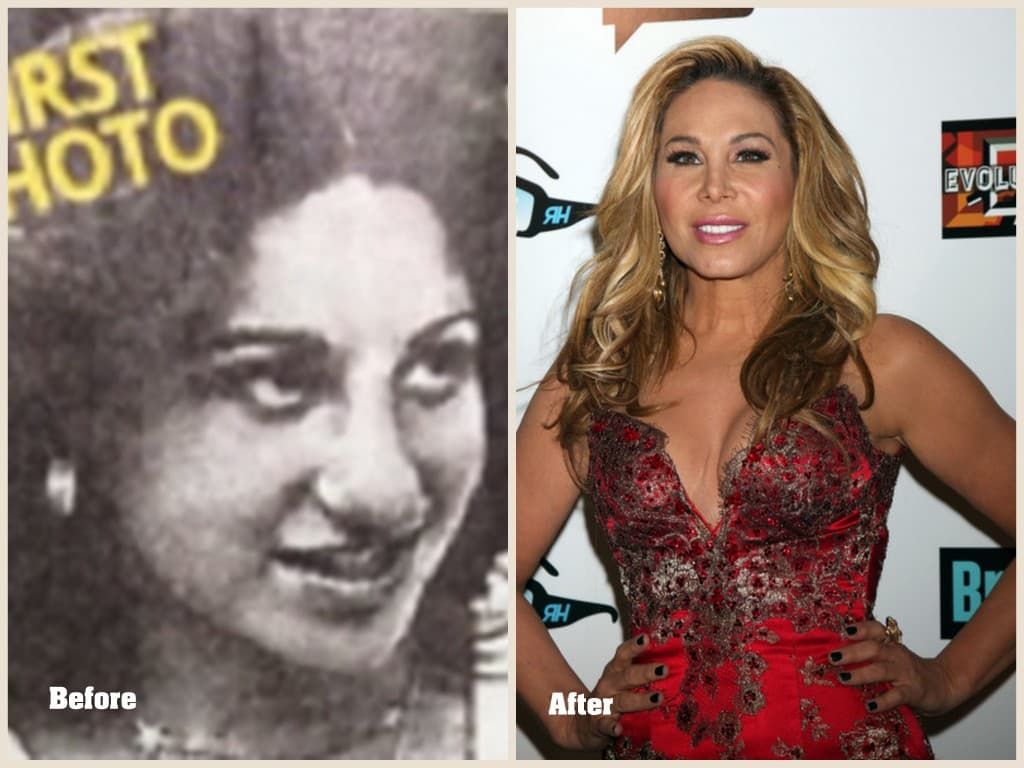 Adrienne Maloof Plastic Surgery Before And After Photos 1