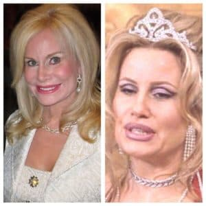 Annabel Bowlen Before And After Plastic Surgery 1