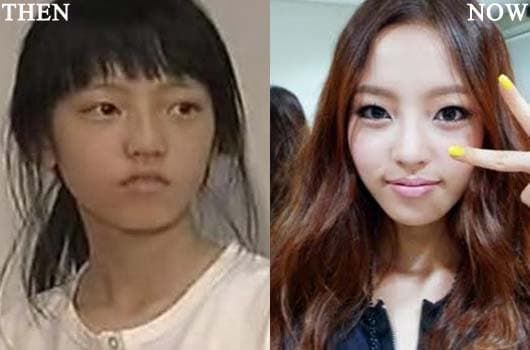 Before And After Korean Celebrity Plastic Surgery Sunny 1